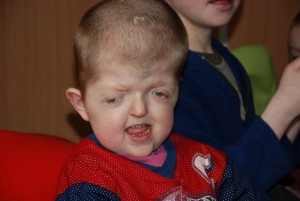 One of the more severely disabled boys, but his smile and laugh were heartwarming...